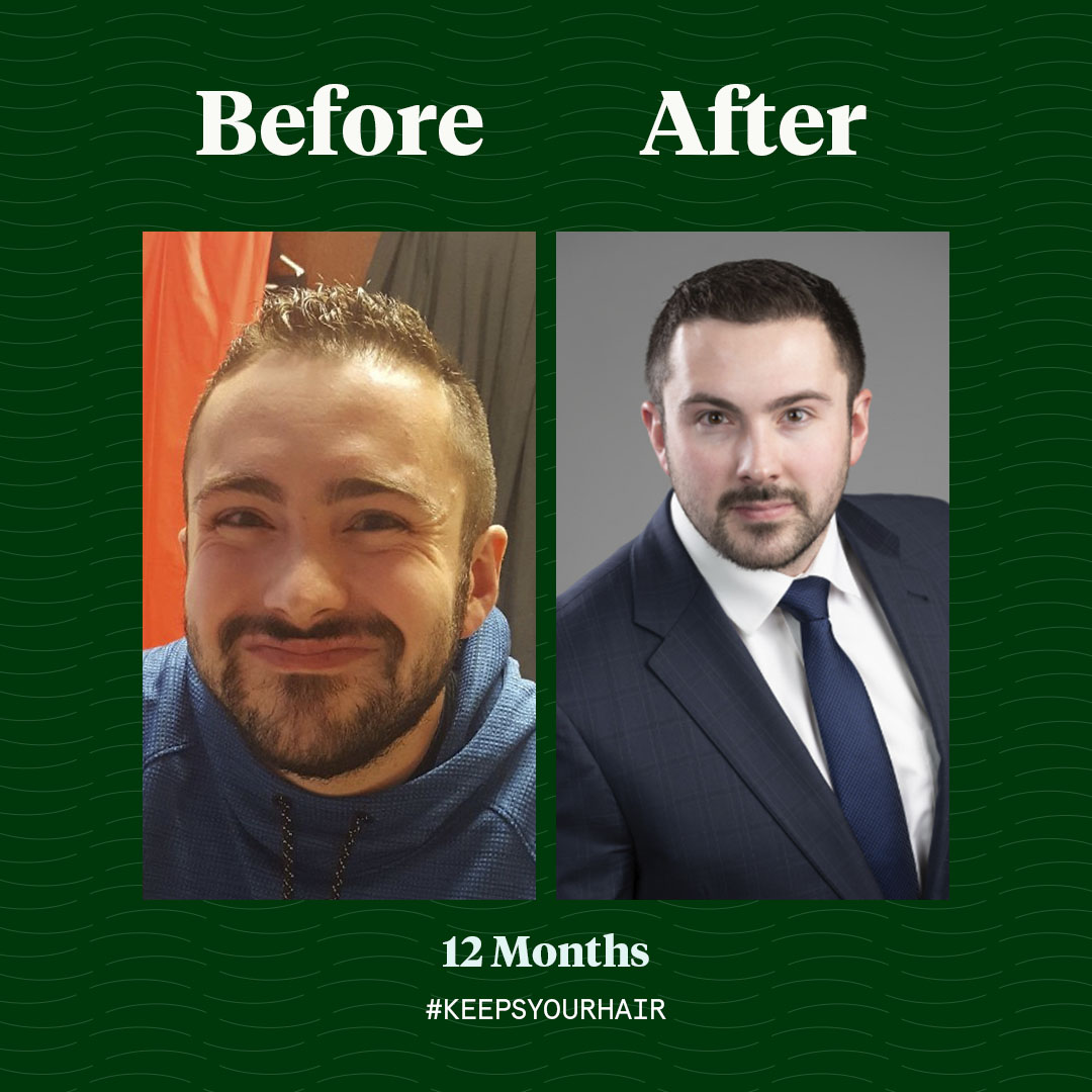 Keeps Hair Loss Treatment Reviews